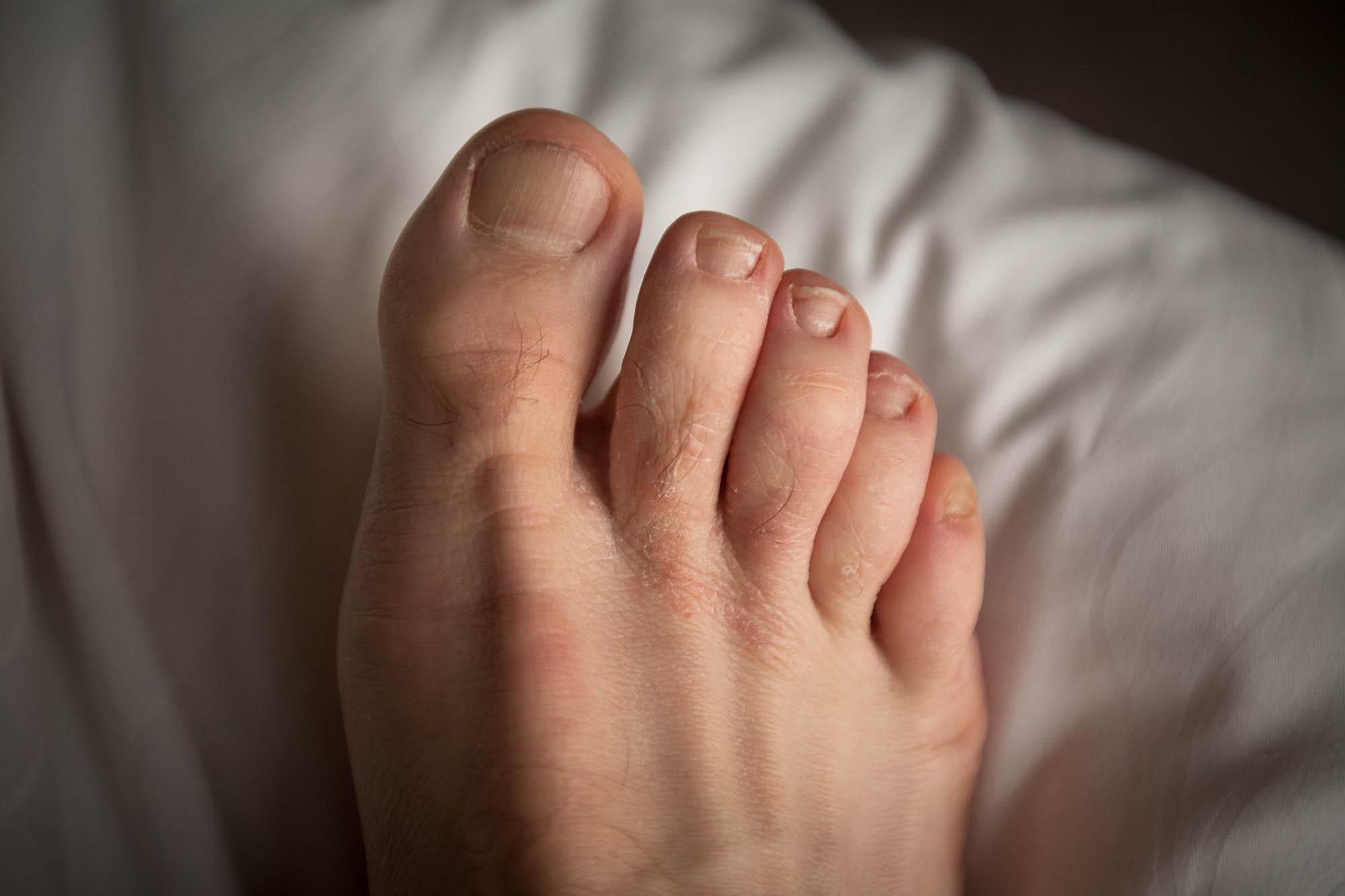 bad foot