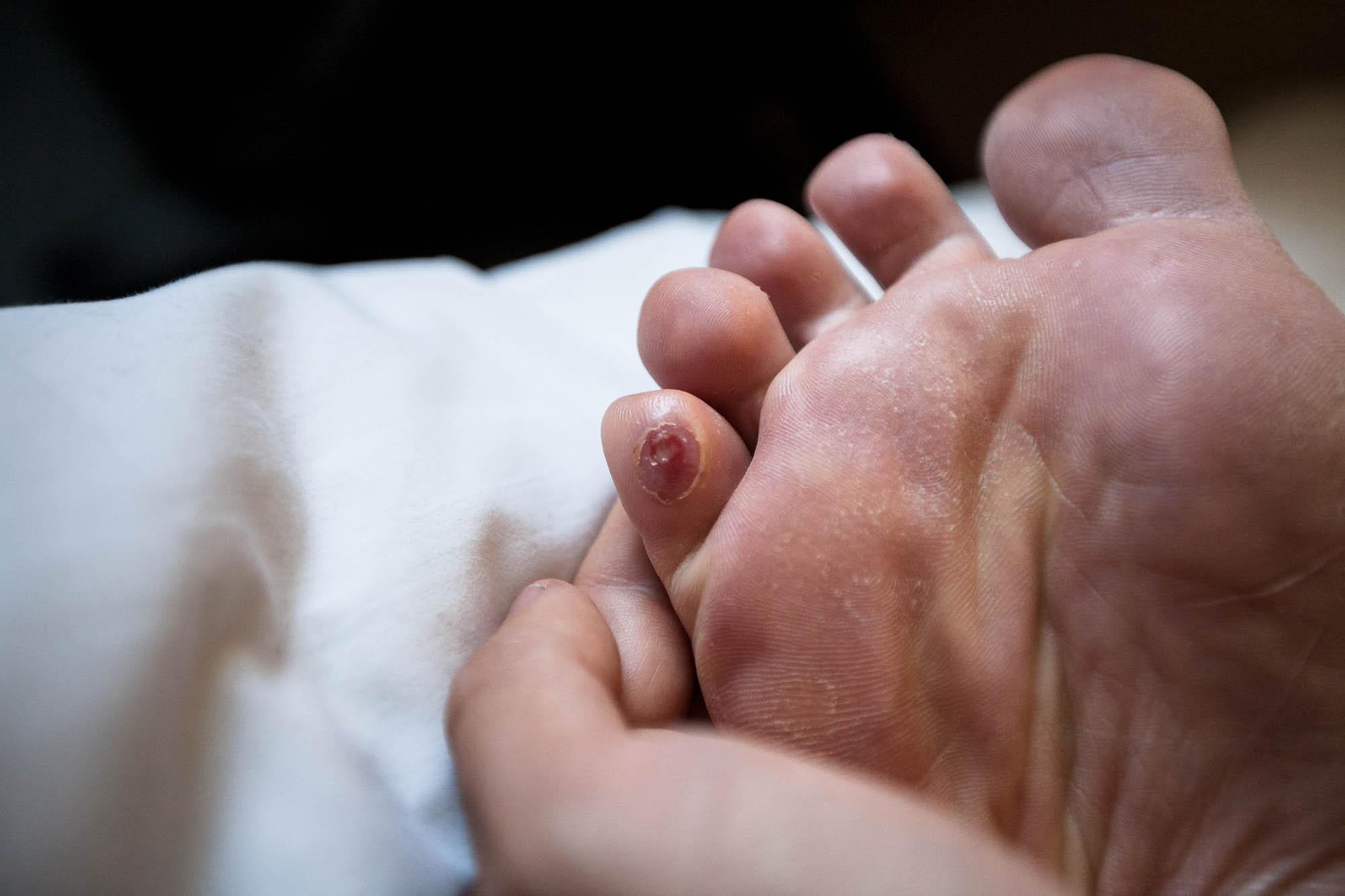 bad toe